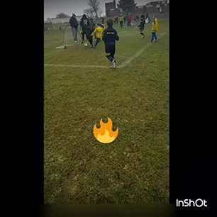 7 year old both feet on fire